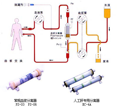 交換 療法 血漿